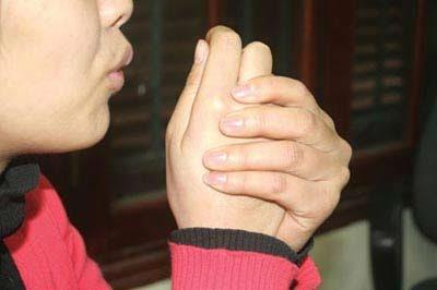 Rùng mình và chân tay thường lạnh buốt là dấu hiệu của bệnh thận yếu