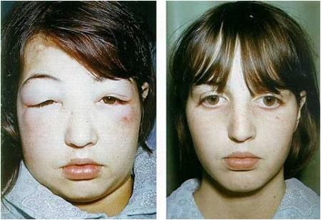 Phù - là triệu chứng đặc trưng giúp nhận biết hội chứng thận hư