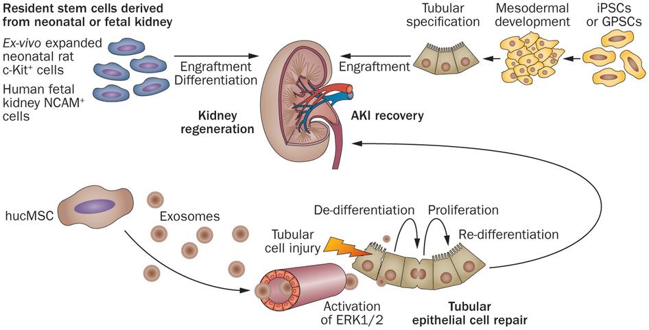 Chữa trị suy thận mạn tính bằng phương pháp tế bào gốc
