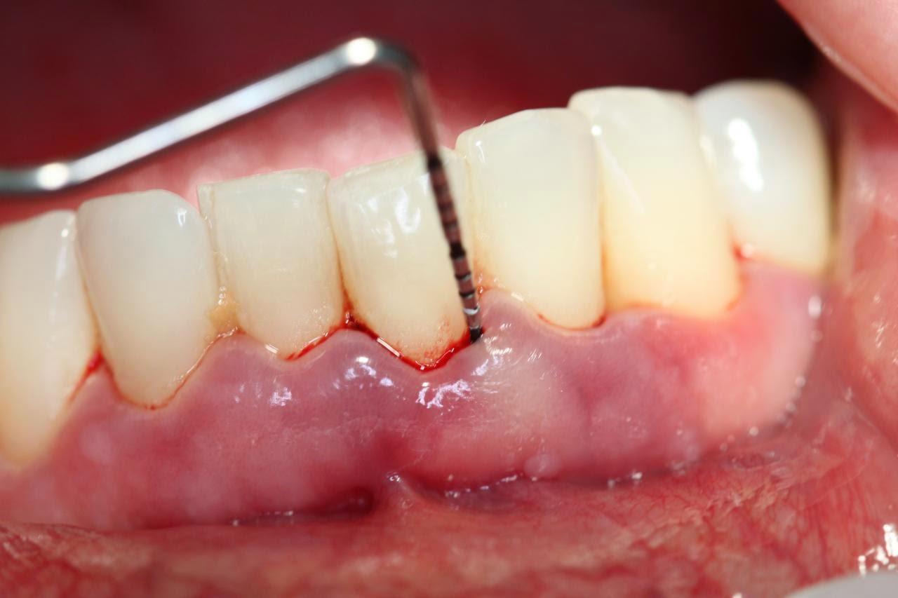 Nam giới bị bệnh răng miệng có nguy cơ bị bệnh yếu sinh lý rất cao