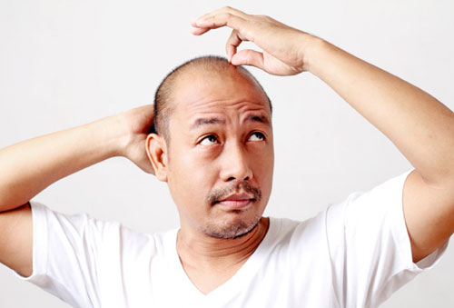 Hói đầu cũng là dấu hiệu nhận biết chàng bị yếu sinh lý