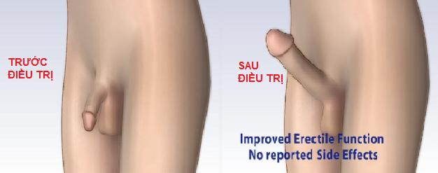 điều trị bệnh liệt dương bằng xung điện
