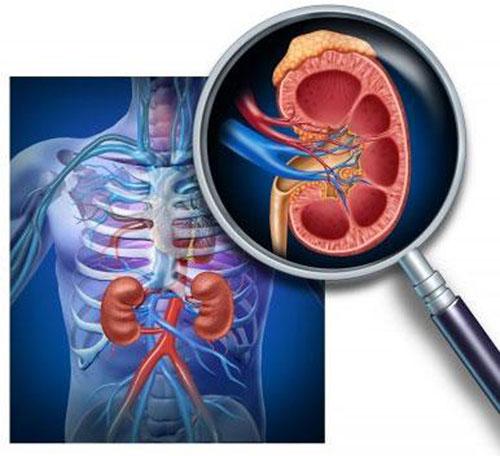 Hội chứng thận hư thường tái phát nhiều lần nên cẩn trọng