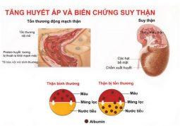 Triệu chứng suy thận độ 3 rõ ràng và thường kèm theo các biến chứng