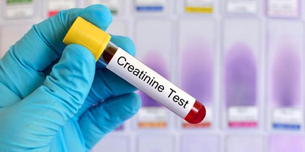 xét nghiệm creatinin máu